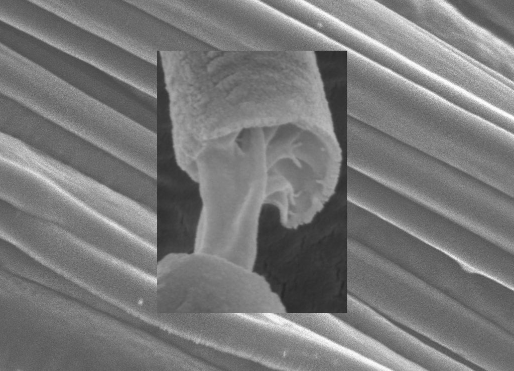 Aligned core-sheath fiber arrays mass-produced by pressurized gyration invented at UCL Mechanical Engineering with the core and sheath of the fibers clearly distinguishable by electron microscopy CREDIT: Sunthar Mahalingam