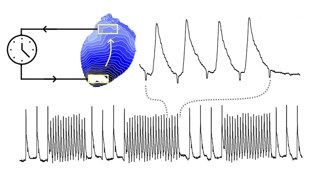 Controllable reentry in a light-sensitive heart: (top left) Activation map during fixed delay pacing; (top right) Alternans (beat-to-beat changes) in voltage; (bottom) The same plot over a longer period shows self-terminating bursts. CREDIT: Gil Bub