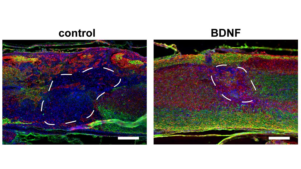 Images show myelinated axons in biomaterial scaffolds eight weeks after injection into the injured cord of a mouse. Scaffolds were fabricated from hyaluronic acid (HA) with a regular network of cell-scale macropores and loaded with gene therapy vectors encoding for brain-derived neurotrophic factor (BDNF), to promote axonal survival and regeneration. These were compared to control scaffolds, which were lacking the BDNF vector. Images show dense infiltration of cells (shown in blue, cell nuclei), axons (shown in red in A, NF200 protein) and myelinating glial cells (shown in green, myelin basic protein) in the BDNF-laden scaffolds. Scale bars = 200 µm. CREDIT: Seidlits et al.