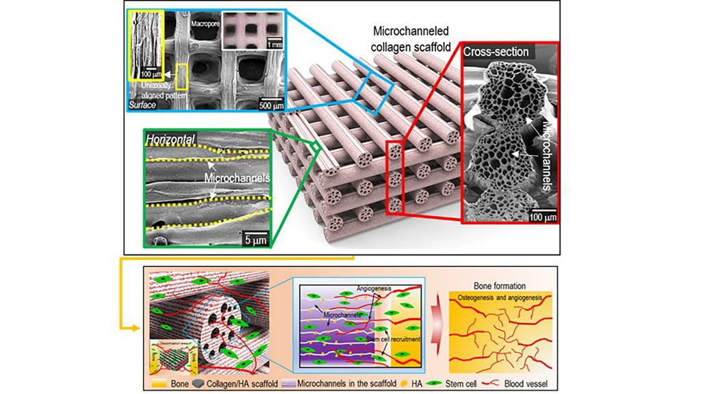 Surface, cross-sectional optical/SEM images showing the uniaxially aligned surface patterns and microchannels within the struts of the fabricated collagen scaffolds. A schematic showing the osteogenesis and angiogenesis of the fabrication of mineralized, microchanneled collagen scaffold. CREDIT: Hanjun Hwangbo, Hyeongjin Lee