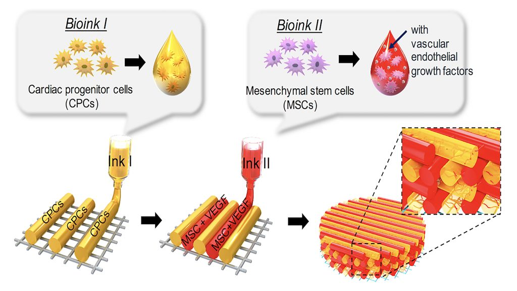 Schematic illustration of a pre-vascularized stem cell patch having multiple stem cell-laden bioinks. CREDIT: Jinah Jang, Reprinted from Biomaterials, Vol 112, Jinah Jang et al., 3D printed complex tissue construct using stem cell-laden decellularized extracellular matrix bioinks for cardiac repair, Pages 264-274, Copyright (2017), with permission from Elsevier.