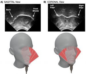 These images show the real-time visual feedback of the tongue in sagittal (A) and coronal (B) planes, and for each condition the orientation of the ultrasound transducer is shown below. CREDIT: Guillaume Barbier, Ryme Merzouki, Mathilde Bal, Shari R. Baum, and Douglas M. Shiller