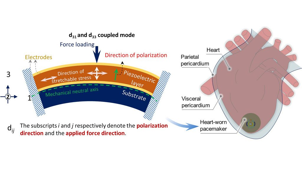 Researchers are investing batteryless powering and leadless pacing, harvesting kinetic energy from the heart to power pacemakers. The energy is harvested by the buckling of the encapsulated structure of the pacemaker, creating buckled piezoelectric energy.